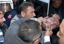 Polis vatandaşın ağzını yırttı