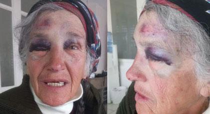 77 yaşındaki emekli Sayıştay hakimini polis bu hale getirdi